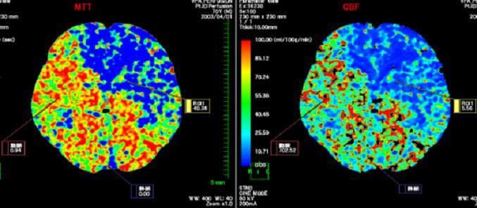 脳Puffusion